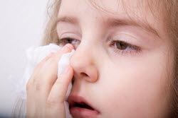 Hausstauballergie bei einem jungen Mädchen